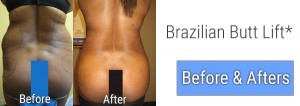 Brazilian Butt Lift Before and Afters in Palm Beach Gardens