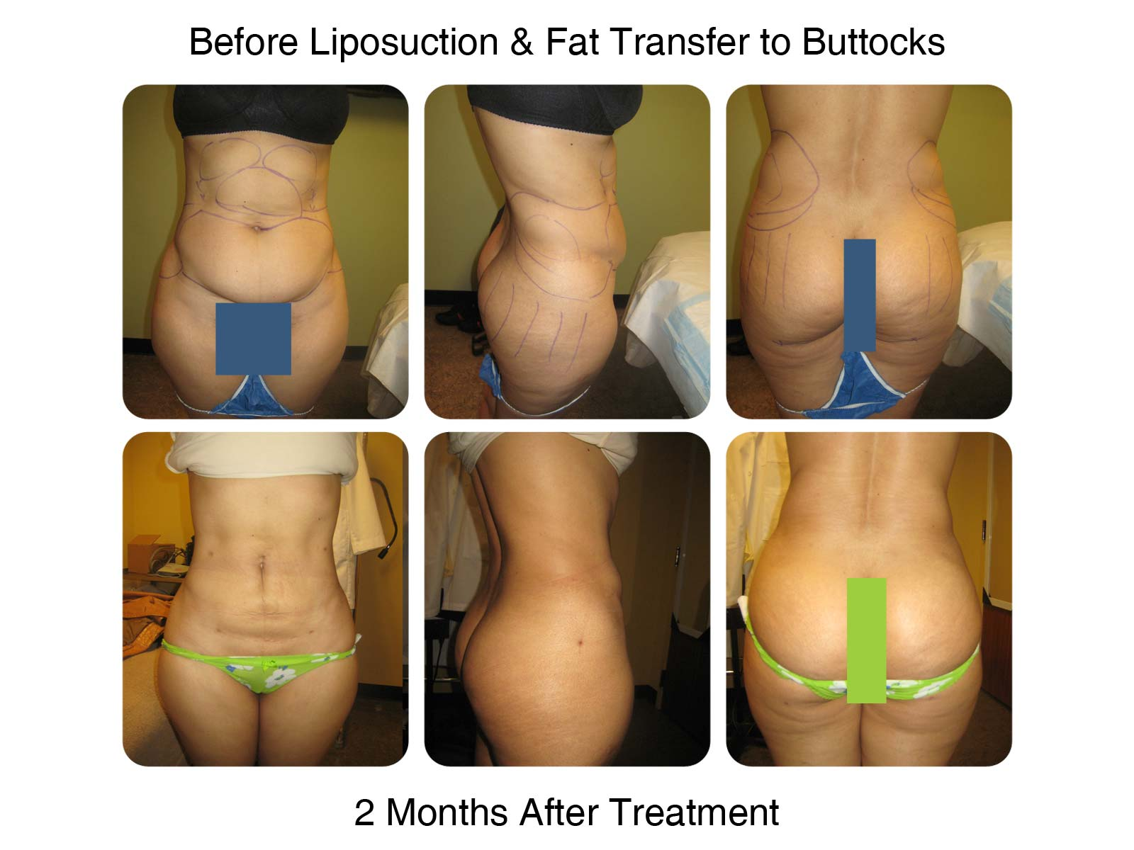 Fat Transfer to Butt