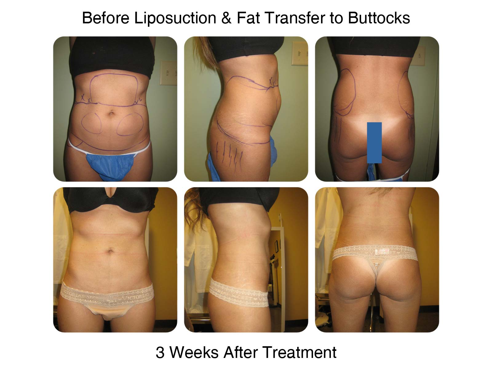 Fat Transfer to Butt Procedure - Before and After