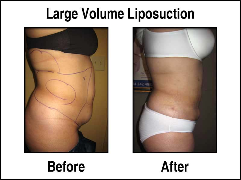Large Volume Liposuction Before and After