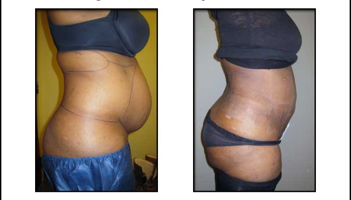 Large Volume Lipo Photos - Before and After