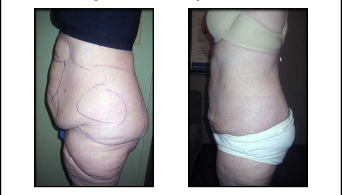 From Flab to Fab! - Large Volume Lipo