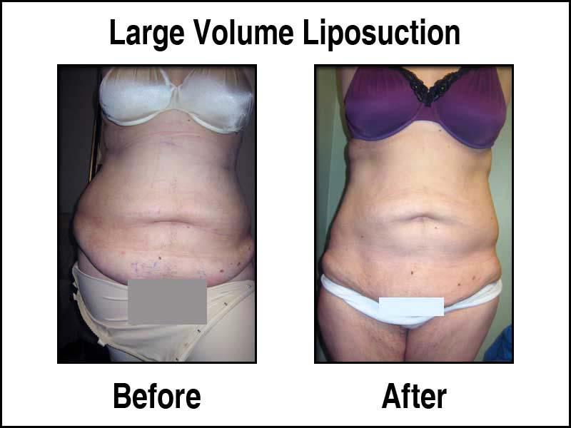 New Radiance Large Volume Liposuction Photos