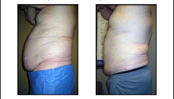 Male Large Volume Liposuction