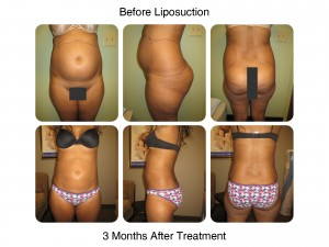 Liposuction - Before and After