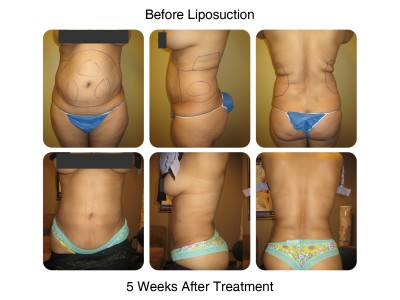 Lipo And Fat Transfer of woman 5Weeks results