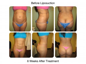 Liposuction - Before and 6 Weeks After