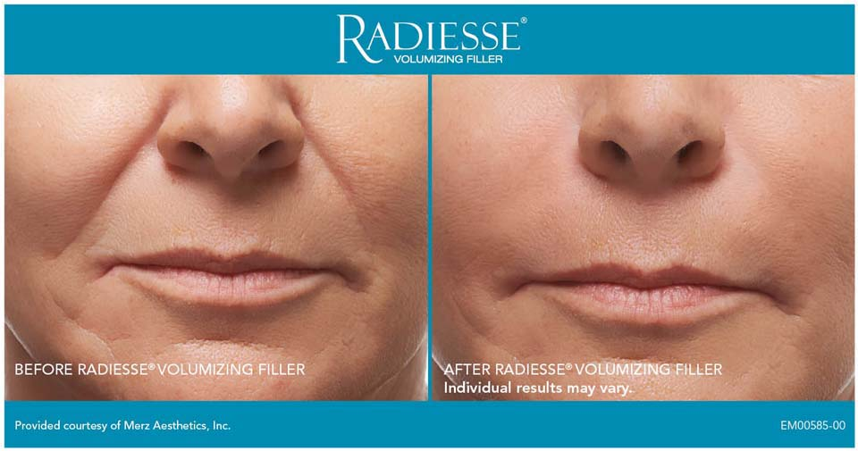 Radiesse on Lips - Before and After