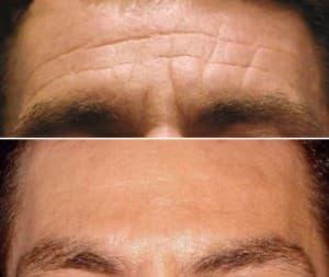 Botox for Men 2
