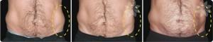 Fat Reduction for Men