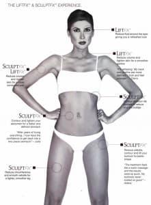 Venus Freeze Treatment Areas