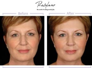 Restylane b&a picture