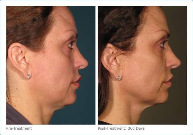 Ultherapy Before & After New Radiance Cosmetic Center Palm Beach