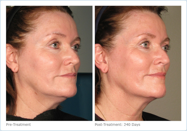 Ultherapy 11