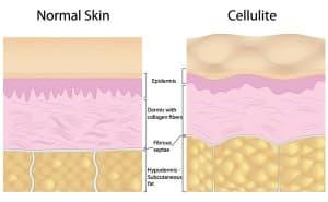Cellulite Graphic