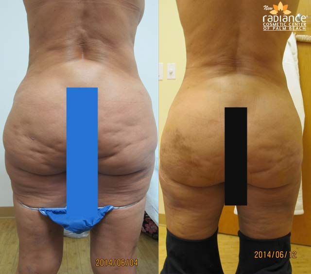 Cellulite Fat Reduction 47