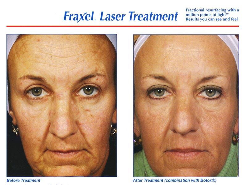 Fraxel Laser Treatment