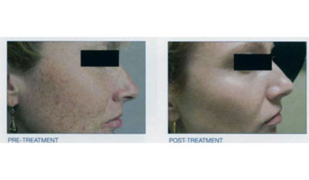 Intense Pulsed Light - Before and After