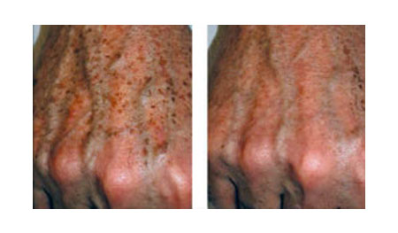 Before and After - Intense Pulsed Light