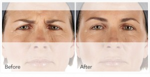 xeomin Before After 6
