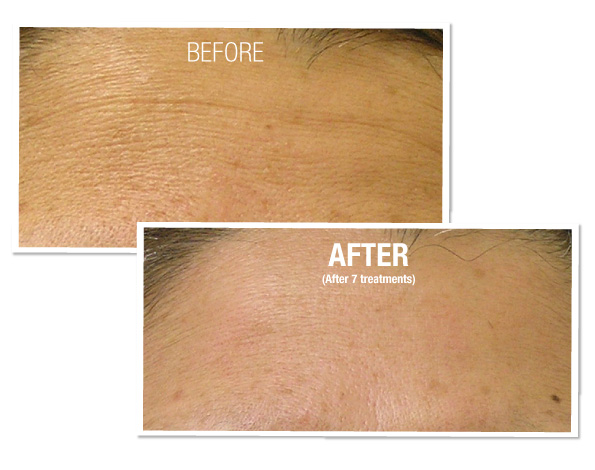 Before and After - Hydrafacial 2