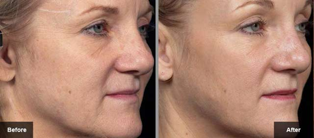 Thermage Before and After