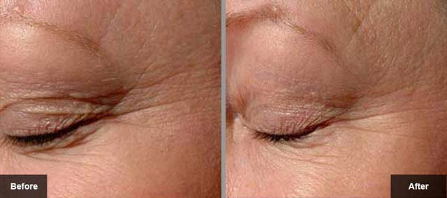 Thermage Before After 3