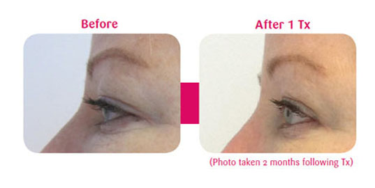 Viora face 5 - Before and After