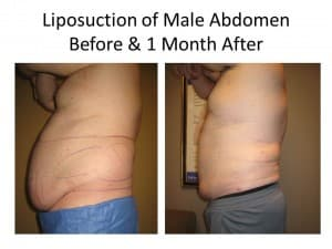 male abs liposuction