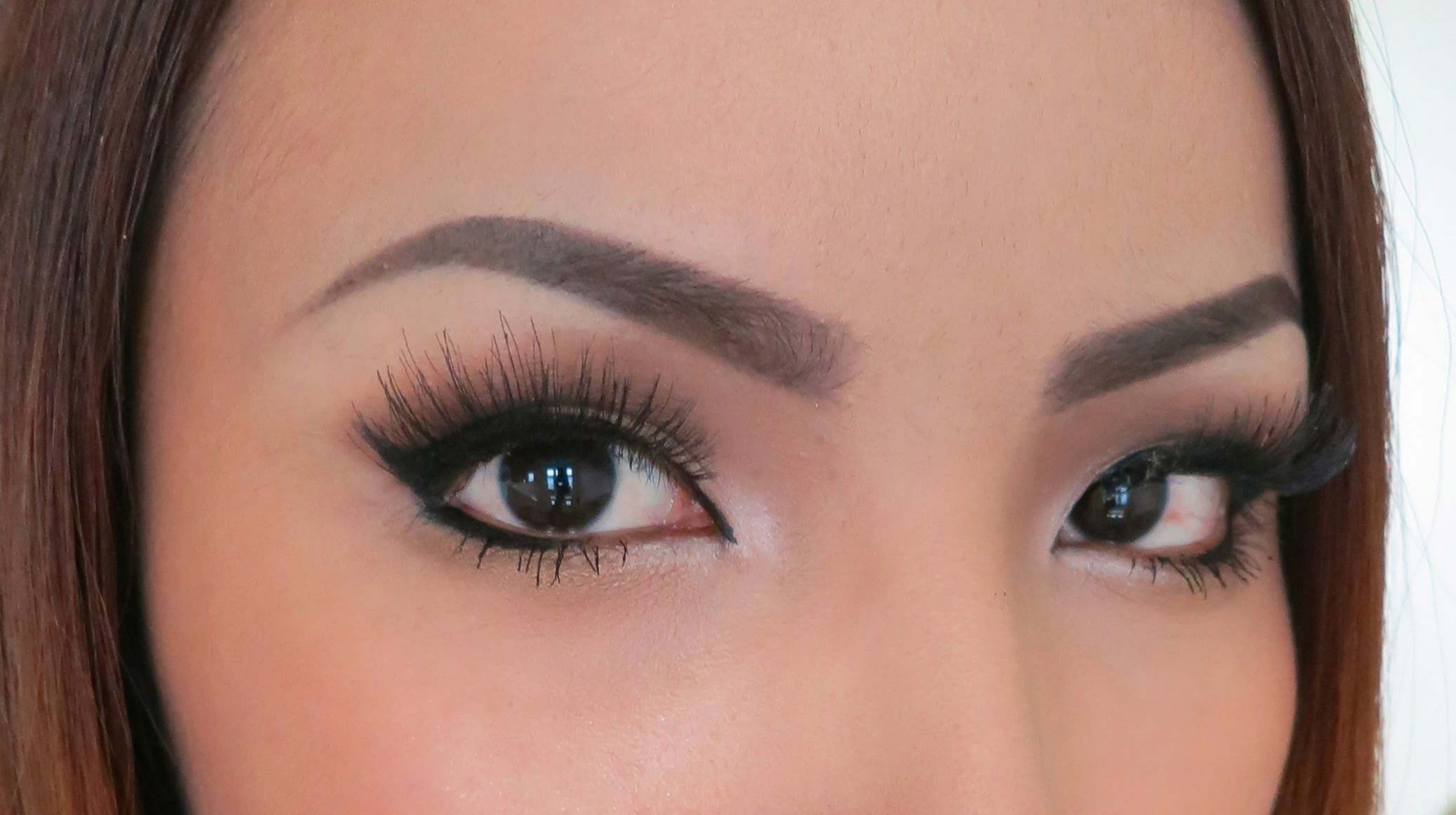 Botulinum Toxin and Eyebrow Asymmetry
