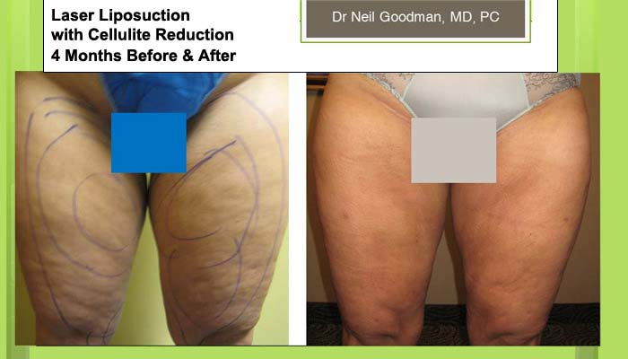 Laser Lipo and Cellulite Reduction woman 4 Months