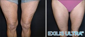 Crepey legs before and after New Radiance