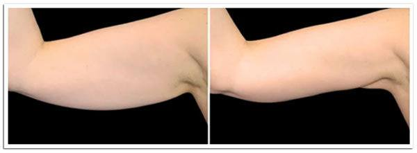 Exilis Ultra Arms Before and After