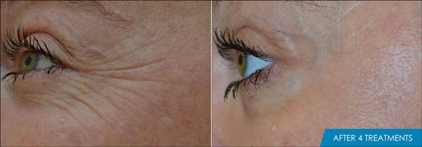 Exilis Ultra Eyes Before & After New Radiance