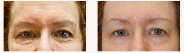 exilis ultra before & after eyes