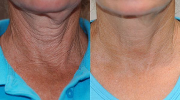 exilis ultra before and after radiance of palm beach cosmetic center
