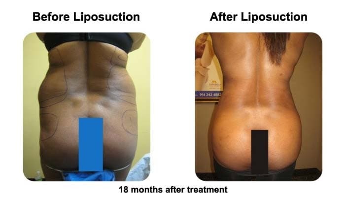 Liposuction results after 18 month