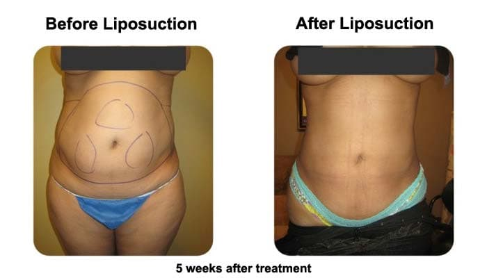Liposuction and Fat Transfer woman 5Weeks