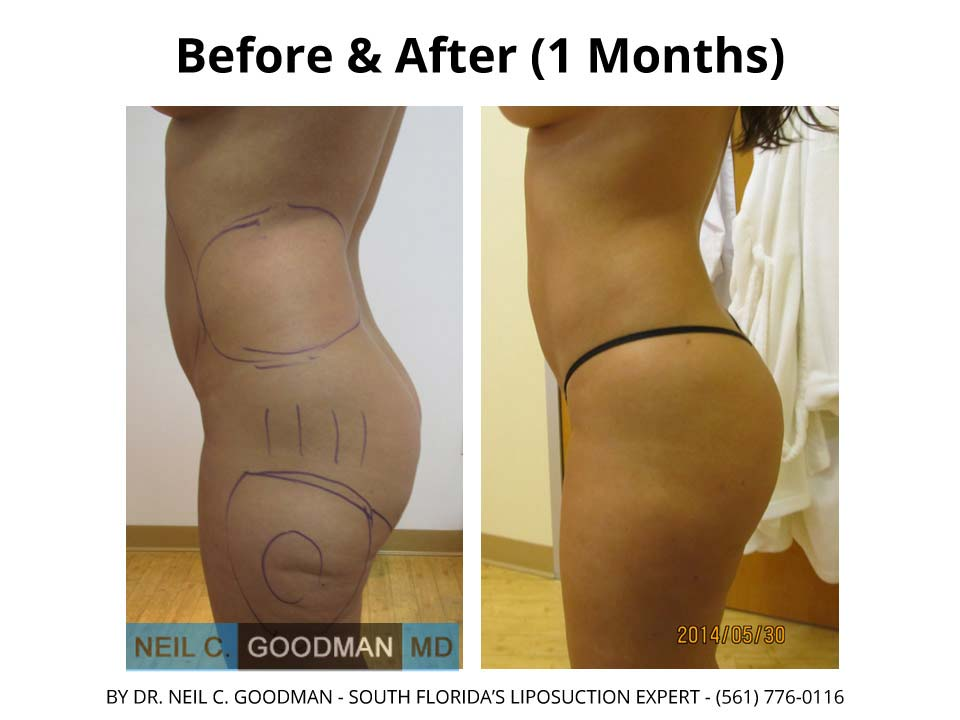 Liposuction results before and after