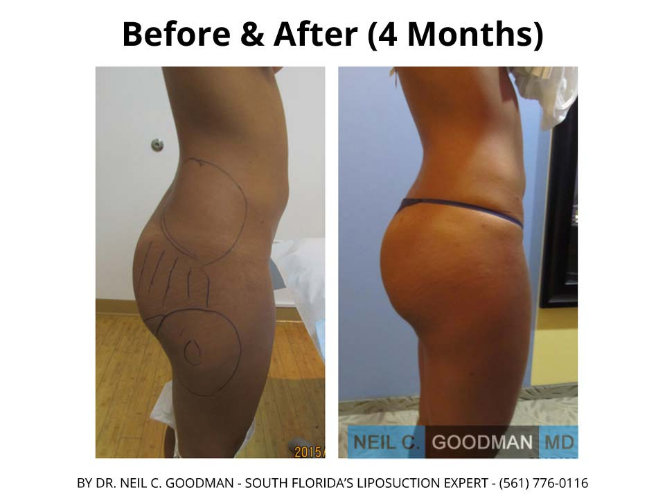 Brazilian Buttlift photo before and after 2