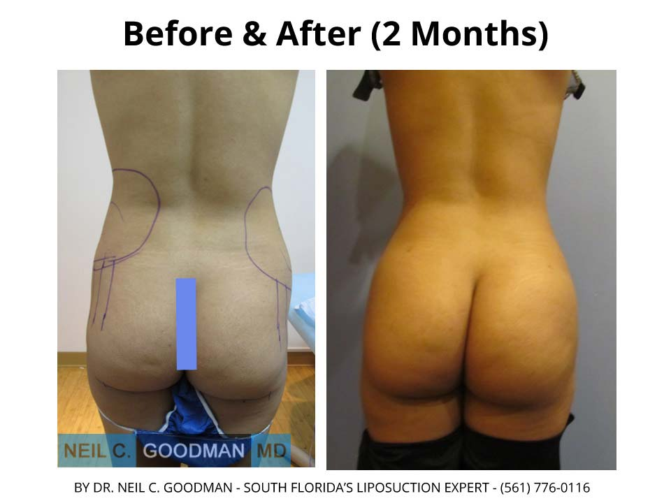 Brazilian Buttlift before and after