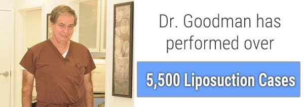 Dr.Goodman has performed over 5,500 liposuction procedures.
