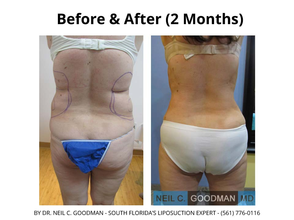 Large volume Liposuction of woman