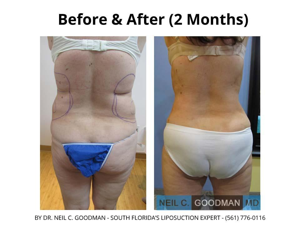 Large volume Liposuction of woman