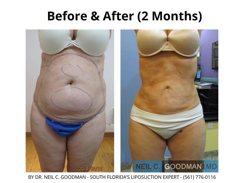 Large volume Liposuction 2 Months