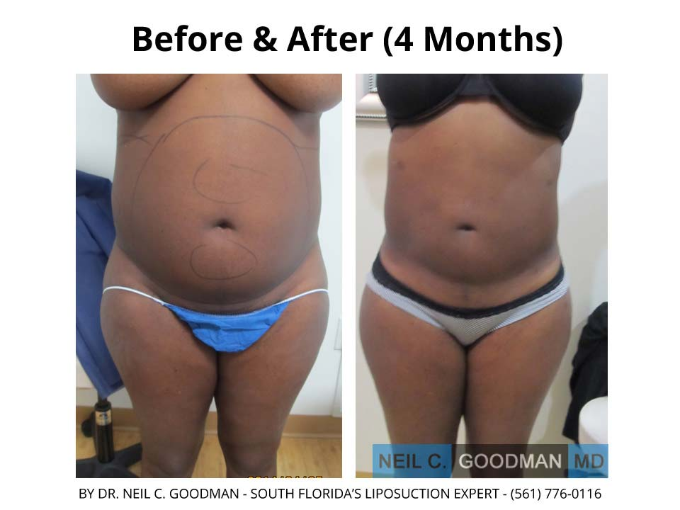 Large Volume Liposuction of woman 4 Months