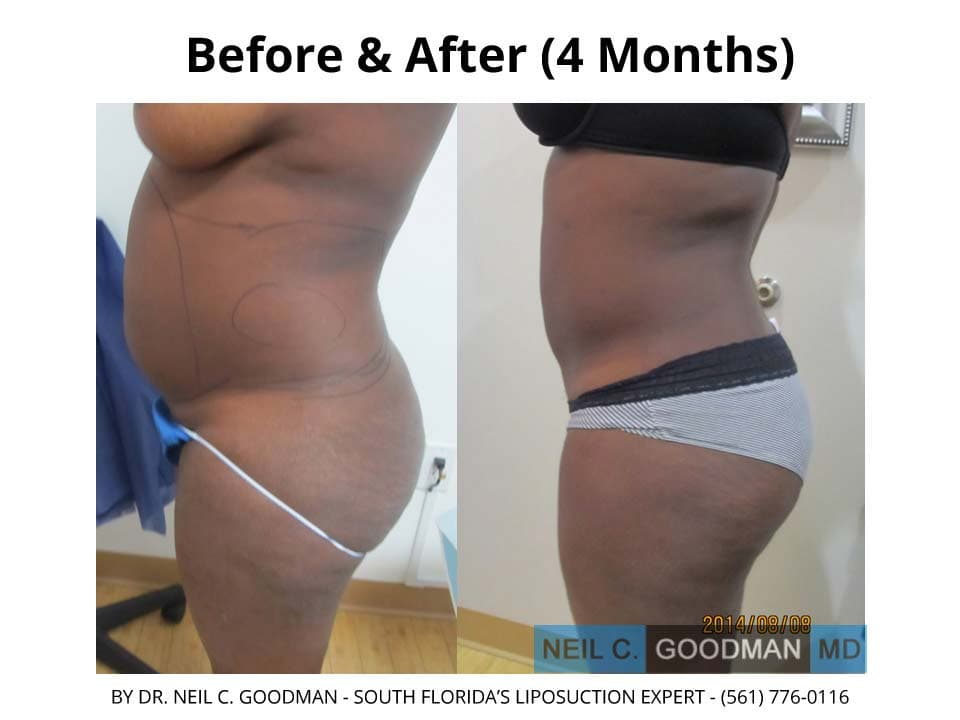 Large volume Liposuction before and after results