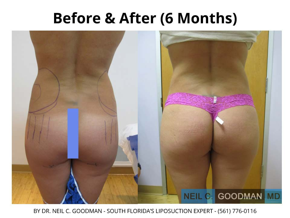 Brazilian Buttlift before and after results photo