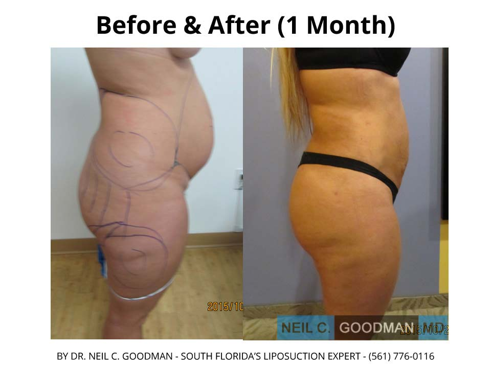 Brazilian Buttlift photo before and after