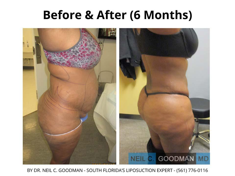 Large Volume Liposuction woman photo